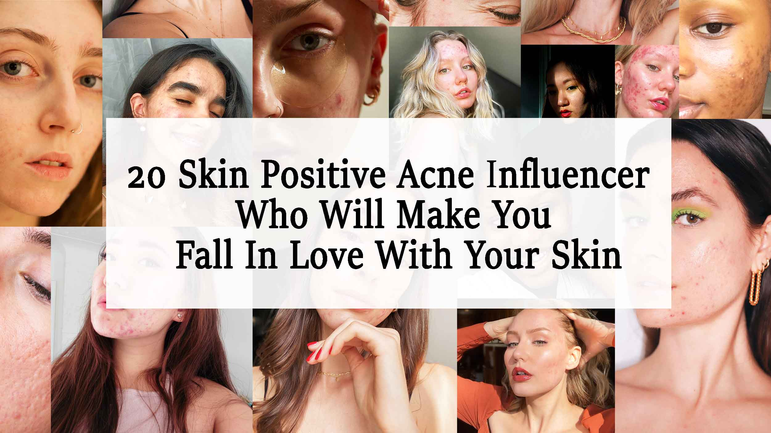 20+ Skin Positive Acne Influencer Who Will Make You Fall In Love With Your Skin